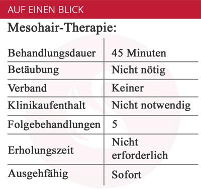 Die Vorteile der Mesohair-Therapie bei Haarausfall, angeboten von S-thetic.